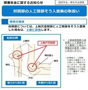 肘関節の人工骨頭